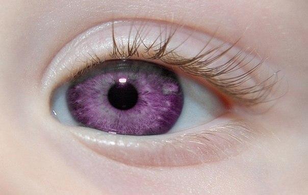Фиолетовые глаза, происхождение Александрии, болезнь
